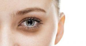 Göz Altı Morlukları Nasıl Geçer?